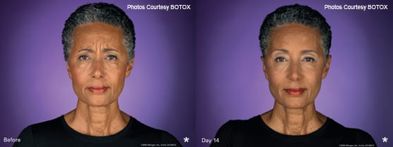 BOTOX therapy Patient Before After Photos Jupiter, FL