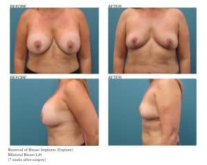 Breast Explant Patient Photos Jupiter, FL